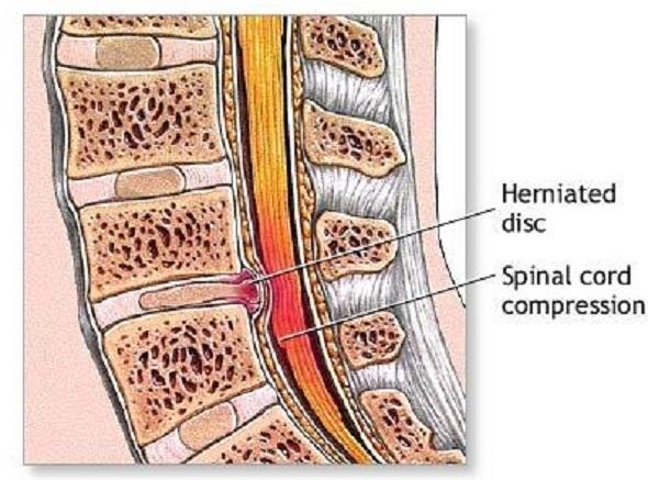 hernie disc toracica