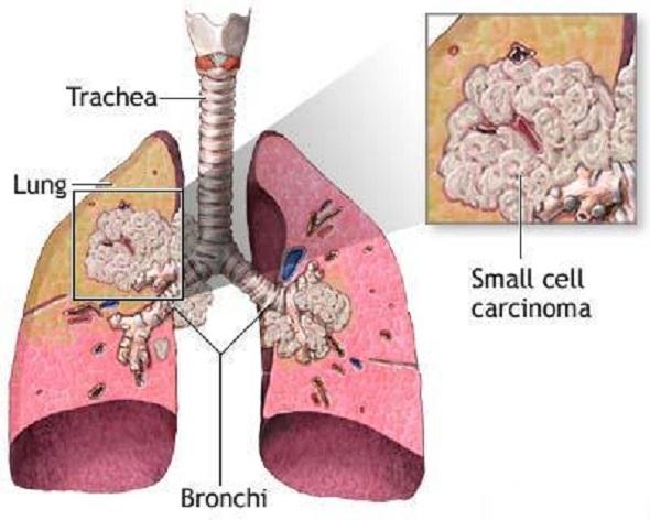 Cancer_pulmonar_cu_celule_mici